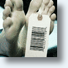 Dead Man's Body Parts Walking: How Much Is Your Dead Body Worth?