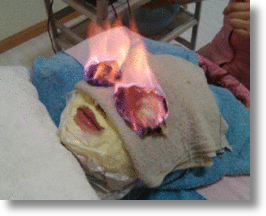 "Chinese Therapeutic ""Fire Treatment"" Improves Looks, Shocks Onlookers"