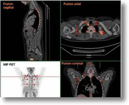 PET Scan showing brown fat