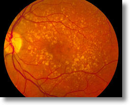 Intermediate (wet) macular degeneration