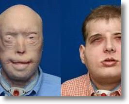 Patrick Hardison Before and After Surgery