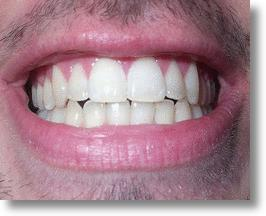 Newly developed nanoparticles may be the best option for treating dental plaque.