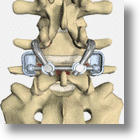 First The Knees, Then The Hips, Now Back Replacement? TFAS®!