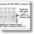 2008 Nobel Prize In Medicine Awarded To HIV And HPV Discoverers