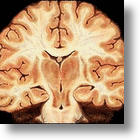 Control Of Fatty Acids May Lead To Alzheimer's Treament
