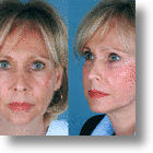 Less Pain Equals More Gain With Adult Stem Cell Facelift!