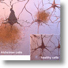 Hope For Successful Alzheimer's Drug Comes After Compound Reverses The Disease In Mouse Models