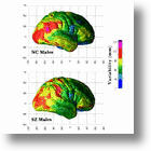 Neuroimaging Can Spot Schizophrenia Before It Manifests