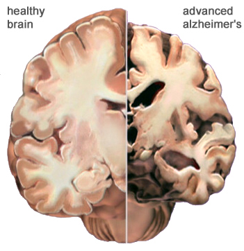 Cognitive areas of Alzheimer's disease patients atrophy: image via Alzheimer's Association