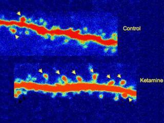 The bottom slide shows regeneration of synaptic connections in group receiving ketamine, compared to control group: Credit: Courtesy of Yale University, image via ScienceDaily.com