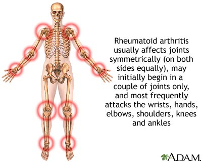 Rheumatoid arthritis can affect every part of your body
