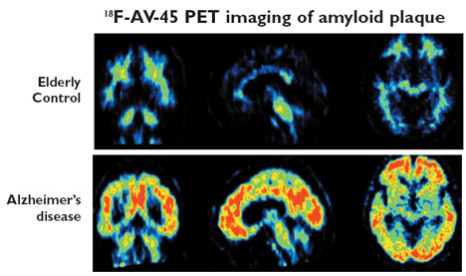Florbetapir with PET imaging shows beta amyloid plaque in the brain.: image via medgadget.com