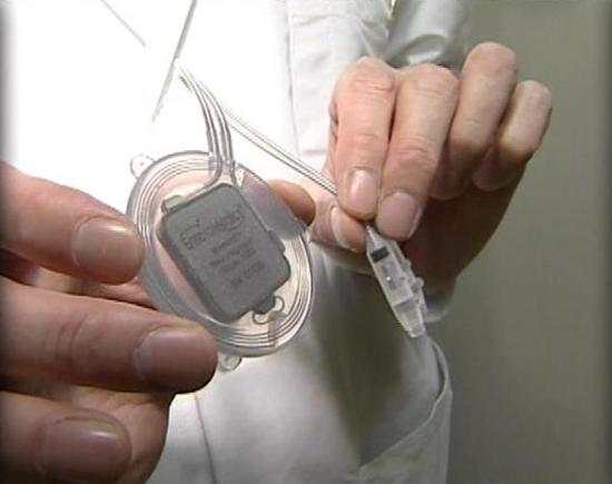 VBLOC implantable device: ©EnteroMedics via ksl.com