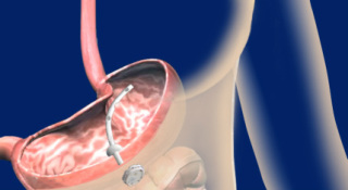 AspireAssist™ aspiration device: ©Aspire Bariatrics