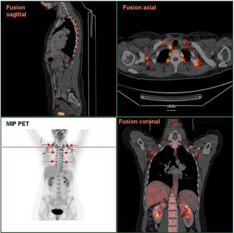 Brown fat: this PET scan was taken of a cold patient to highlight brown fat stores. Image from Hg6996.