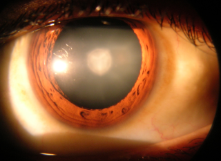 A cataract in a human eye: image via wikipedia.org