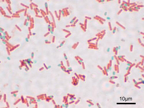 Bacillus subtilis: spores of this bacteria swell and shrink in response to changes in humidity. Image by Y tambe.