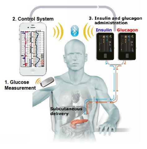 Bionic Pancreas System developed by Boston Unversity & Massachusetts General Hospital: image via diabetesmine.com