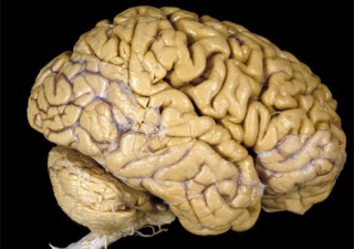 Scientists are in the process of developing a living model of the human brain.