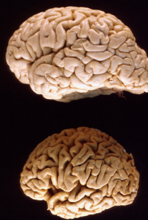 Brain atrophy: © University of Alabama, Department of Pathology via ucsf.edu