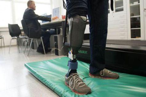 The New Prosthetic limb: Source: Damn Geeky