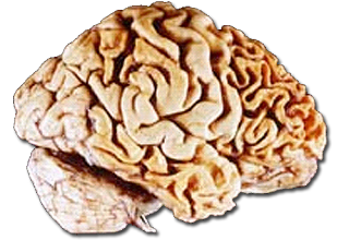 Frontotemporal dementia characterized by degeneration of the frontal lobe: image via ask.com