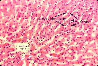 Hepatocytes are arranged into cords, separated by vascular sinusoids: image via siumed.edu