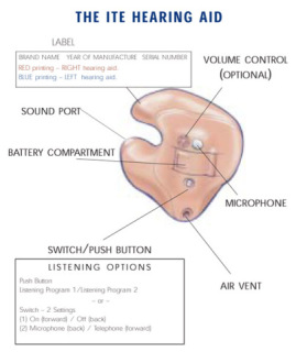 One type of hearing aid that can benefit from continual cleanings: image via hearinglife.com.au