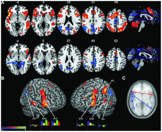 Improvisation likened to coversation in the brain: image credit: PLOS One via medicalnewstoday.com