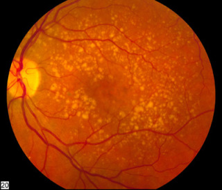 Intermediate (Wet) Macular Degeneration: image via wikipedia.com