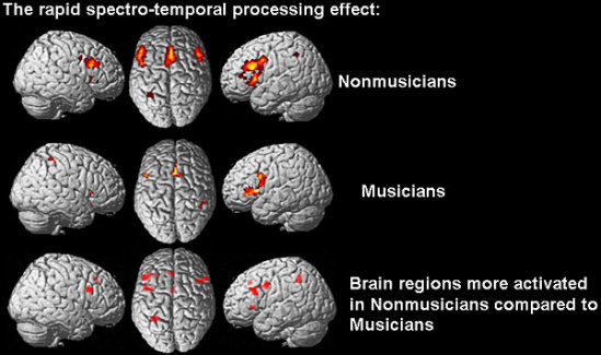 A Stanford study in 2005: Researchers have demonstrated that people with musical experience found it easier than non-musicians to detect small differences in word syllables.: image via stanford.edu