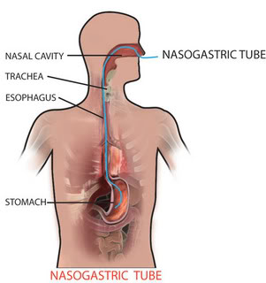 Duodenal tube, or nasogastric tube, can be used for feces transplants.