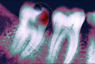 Cavity seen on an x-ray.: image via webMD.com
