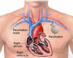 Traditional Cardiac Pacemaker: Source:heartrhythmsfla1