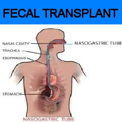 research utilization project fecal transplantation