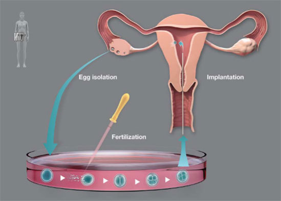 In vitro fertilization, as developed by Robert G Edwards: image via nobelprize.org
