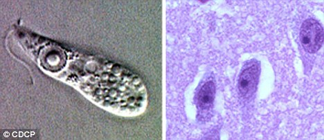 Naegieria fowleri (left) and a stained sample seen in brain tissue: Image: CDCP via dailymail.co.uk