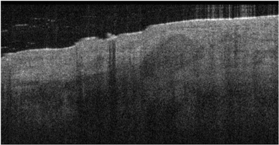 The raised mound to the right of center on this scan is identifiable as Basal cell carcinoma: ©Michelson Diagnostics