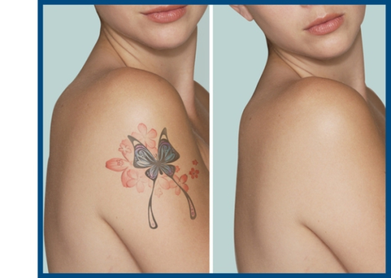 Get Rid Of Old Or Unwanted Tattoos With Simple Cream BLTR