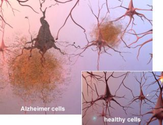 Amyloid plague cells, of the kind seen in Alzheimer's disease: image via healthinformer.net