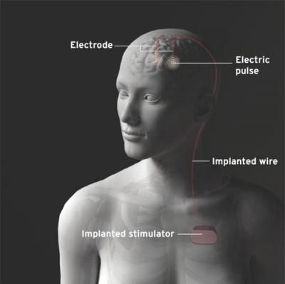 """Optimal Target For DBS For Depression"": image via shockmd.com"