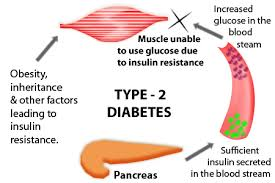 Type 2 Diabetes Diagram