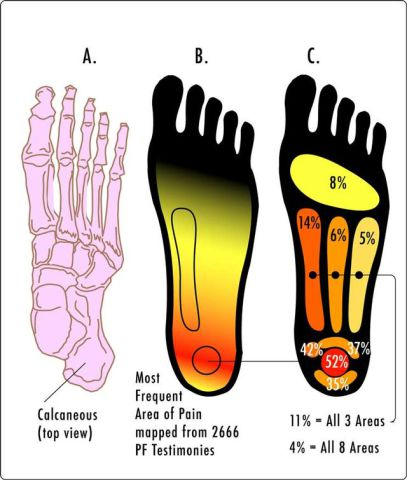 Foot with plantar fasciitis: image: Wikipedia.org