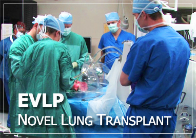 Ex vivo lung transplant: image via umm.edu (University of Maryland Medical Center