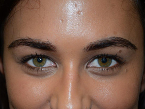 Photo courtesy Eyebrow Transplantation by Dr. Epstein