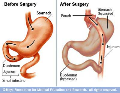 Gastric bypass diagram: image by Mayo Foundation for Educational Research via drjosephnaim.com