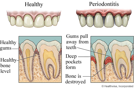 Link between gum disease and Alzheimers:  Healthwise Inc; image via revolutionhealth.com
