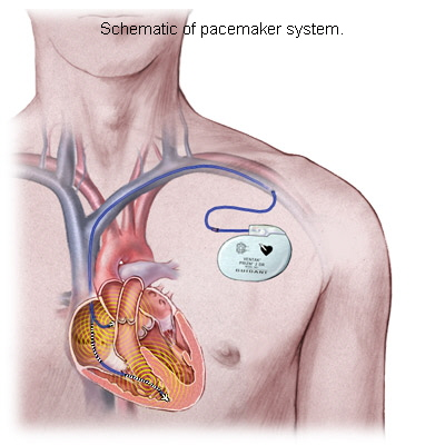 heart-powered pacemaker.