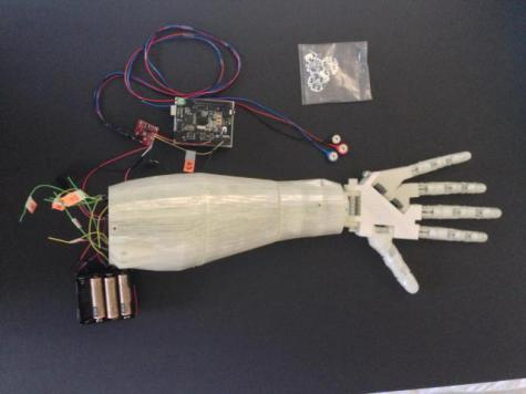 Prosthetic Arm and Parts: Source: IFL Science
