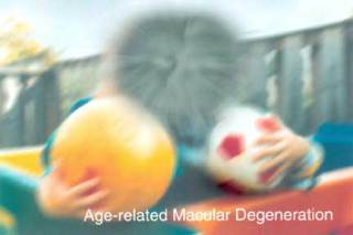 Dry AMD image obscures visual details: image via medicineworld.org